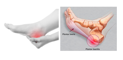 Top Tips to Ease Plantar Fasciitis