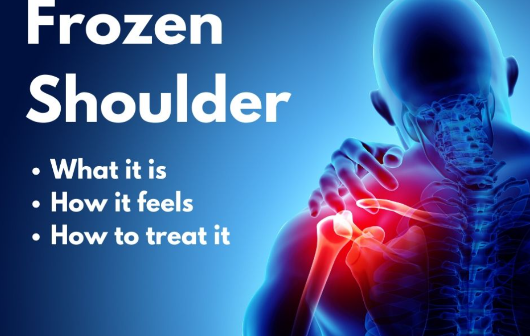 Everything you need to know about: Frozen Shoulder (Adhesive Capsulitis)
